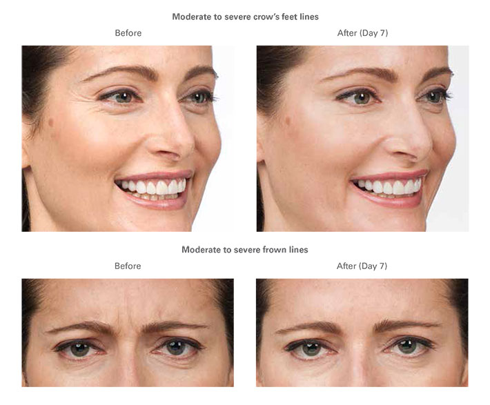 Botox | Skin & Spa | Ultimate Plastic & Reconstructive Surgery